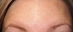 After Facial Botox