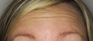 Before Facial Botox
