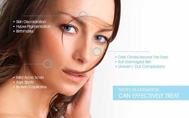 View Photorejuvenation Treatments