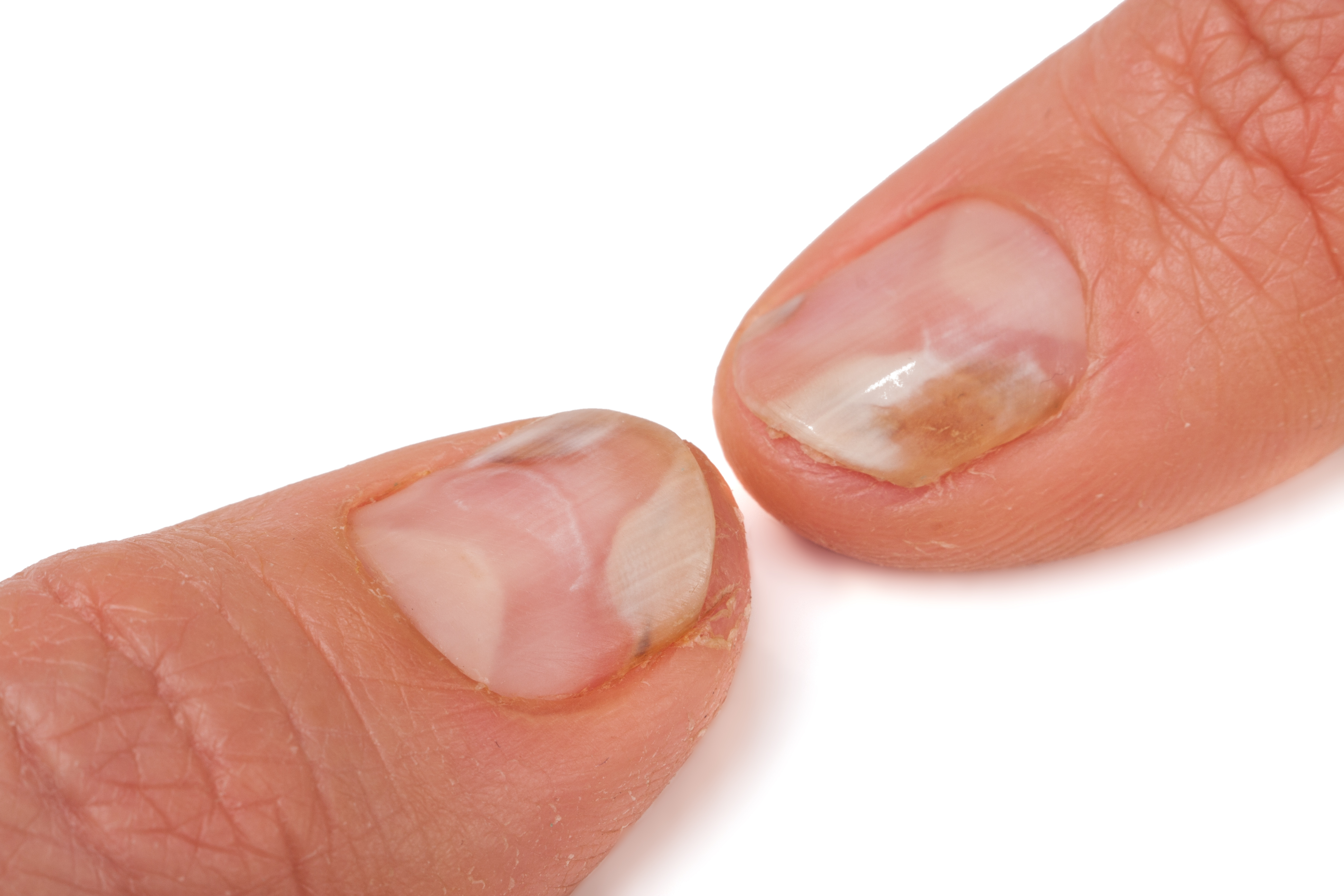 View Onychomycosis Treatments