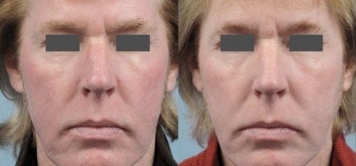 Rosacea_Sample2