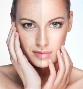 ipl-photofacial-NYC