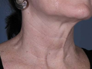 After neck line botox