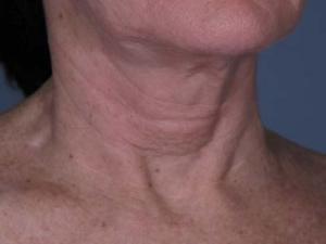Before neck line botox