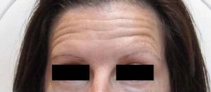 Before Botox
