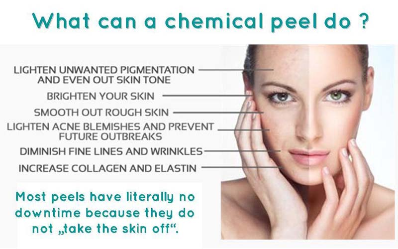 How does a chemical facial peel work